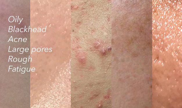 男人的肌膚問題,總是擺脫不了毛孔粗大、粉刺、青春痘、出油量大,原來這些肌膚問題都來自於...