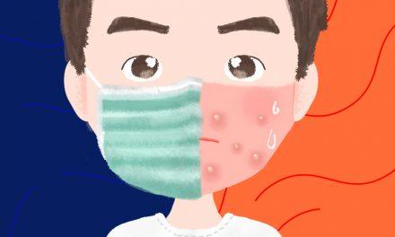 【威爾HOLD住】「口罩痘」疫情蔓延,這五件事情一定要注意